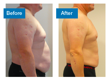3d-Lipo Before/After